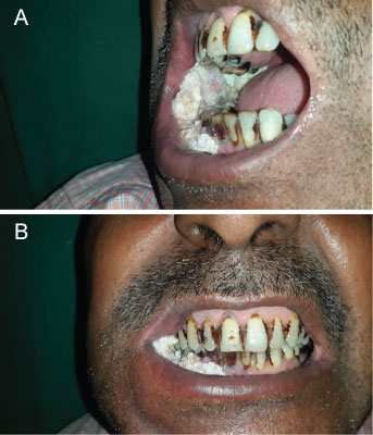 Stages Of Oral Cancers Images Associated With Tobacco And Other Social Behaviours Among Patients In Banglore State India