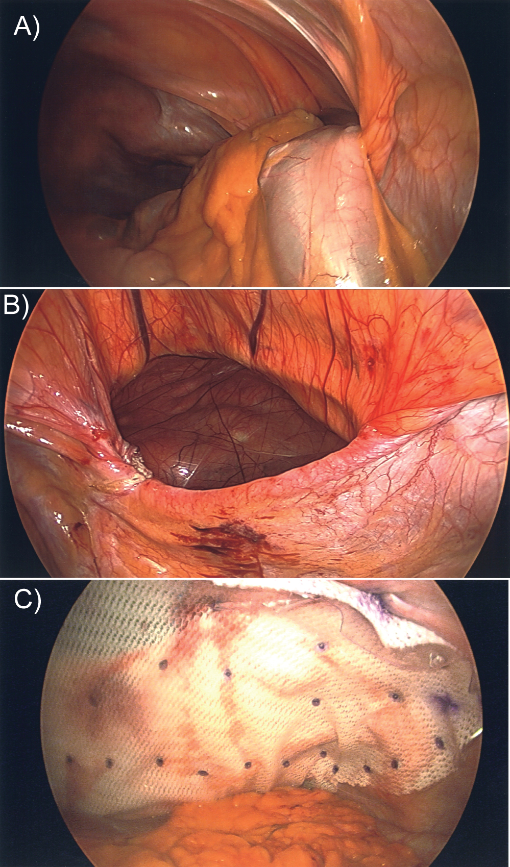 A Rare Case of an Adult Congenital Diaphragmatic Hernia
