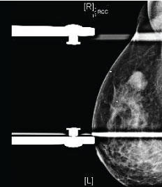 Triple Negative Breast Cancer What Crucial Information Can Imaging Add To The Diagnosis Treatment And Prognosis