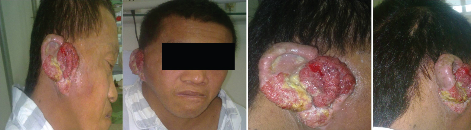 Squamous Cell Carcinoma in Pinna and External Auditory Canal: A Case