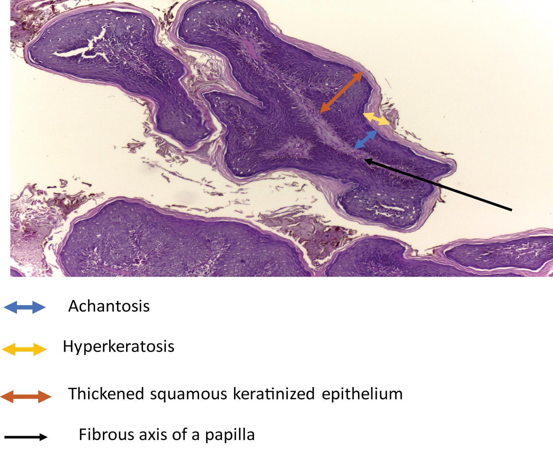 Helminthophobia adalah. Jacuzzi baktériumok