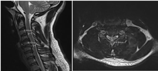 Self Manipulated Cervical Spine Leads to Posterior Disc
