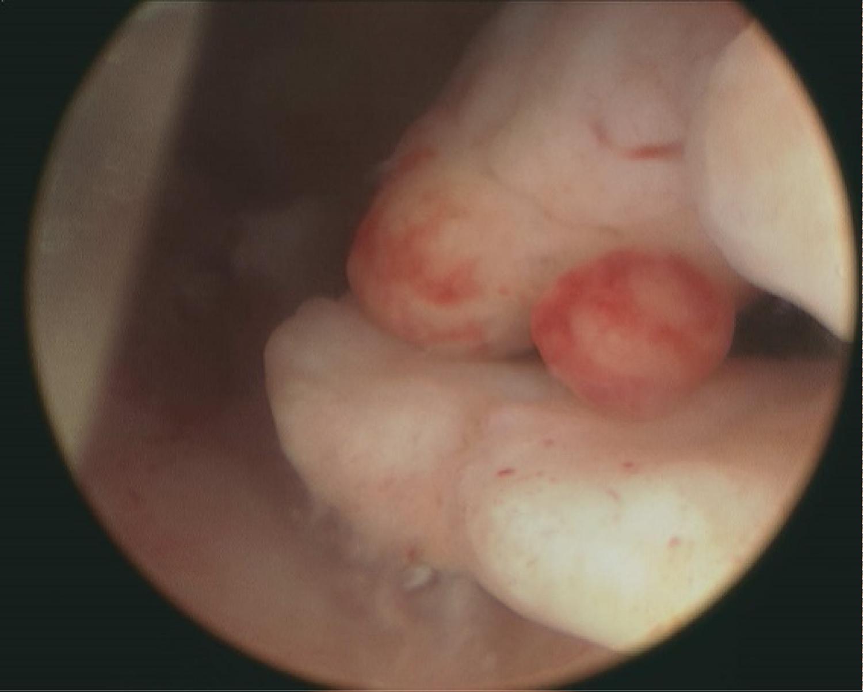 Cancer endometrial polyp