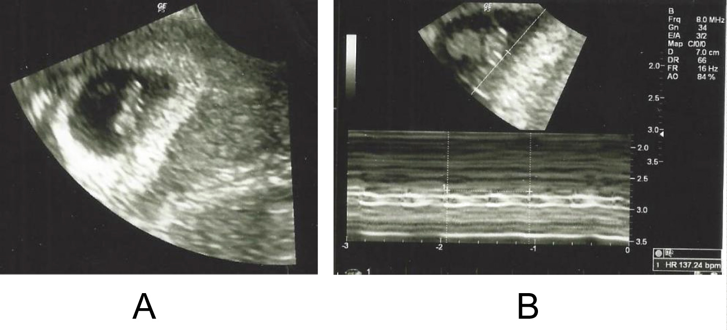 Ultrasound is what at weeks kind done of 7 ultrasound at